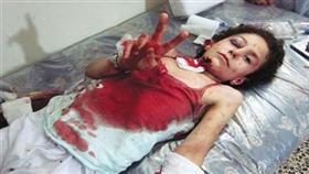 فتاة سورية مصابة ترفع شارة النصر خلال تلقيها للعلاج في أحد مستشفيات القصير في حمص (ا ف ب)