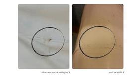 بكتيريا في أَسِرّة مرضى السرطان بمركز بدرية الأحمد