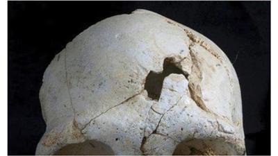 الجمجمة التي يعتقد العلماء أنها تعود إلى 430 ألف عام
