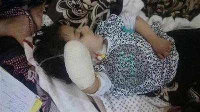 الطفلة سانا ضحية إهمال الأطباء