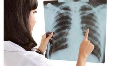 أمريكا: ازدياد معدلات سرطان الرئة لدى النساء