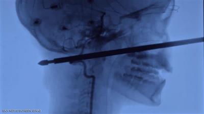 صورة أشعة للحادثة