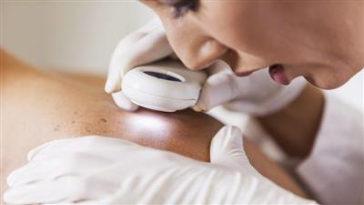 كيف تكشف علامات سرطان الجلد مع ارتفاع درجات الحرارة؟