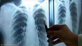 علماء صينيون يتوصلون لـ«علاج محتمل» لسرطان الرئة