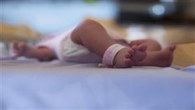 طفلة بـ «ثلاثة رؤوس» تذهل الأطباء في الهند