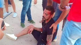 نجم منتخب مصر ونادي الزمالك سابقًا يتعرض لحادث مروع