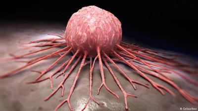 مسؤول اممي: «السرطان» يفتك بعشرة ملايين انسان العام الماضي