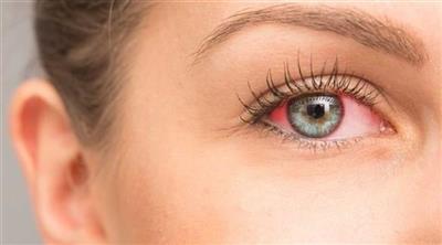 إحمرار العين تنذر بالتهاب الملتحمة