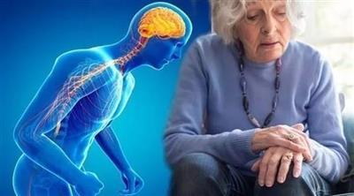 احتمال إصابة الرجل بالشلل الرعاش ضعف المرأة