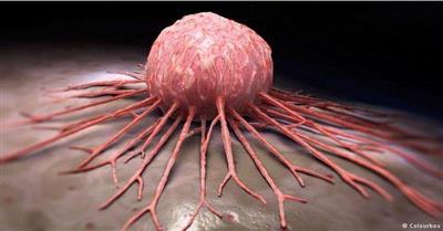 الإبراهيم: اكتشاف 4466 ورما «حميدا» عبر الكشف المبكر لسرطان القولون وعلاجها