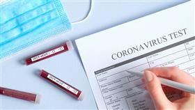 علماء صينيون يختبرون عقارين مضادين لفيروس كورونا والنتائج بعد أسابيع