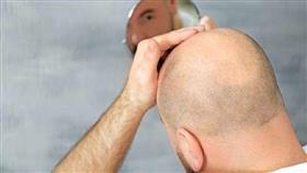 دراسة تكشف عن زيت نباتي أثبت فعاليته في تحفيز نمو الشعر